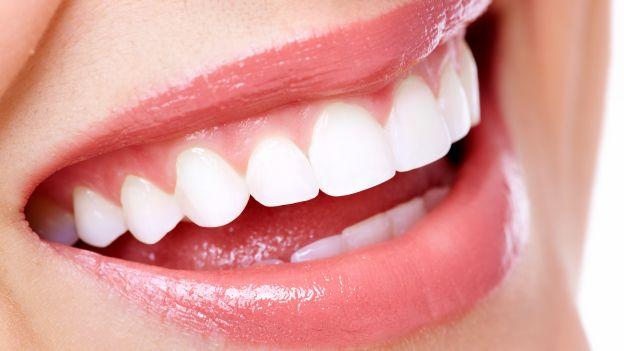 Come+sbiancare+i+denti+in+modo+naturale